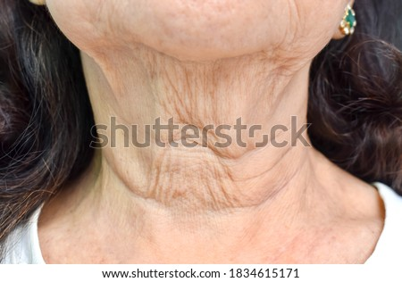 Aging skin folds or skin creases or wrinkles at neck of Southeast Asian, Chinese elderly woman. Front view. Royalty-Free Stock Photo #1834615171