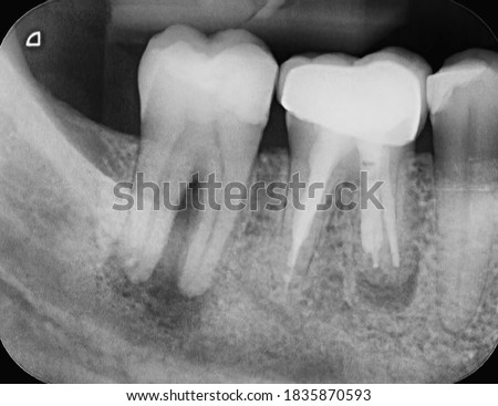 X-ray of two human tooth molars, both showing infections. One has an abscess and one has been root canal treated already and has a crown. Endodontic therapy. Royalty-Free Stock Photo #1835870593