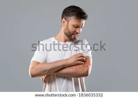 Dermatitis, eczema, allergy, psoriasis concept. Annoyed middle-aged man in white t-shirt scratching itch on his arm, grey studio background. Bearded man itching rash on his elbow, copy space Royalty-Free Stock Photo #1836035332