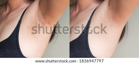 Image before and after skincare cosmetology armpits epilation treatment concept. Problem underarm chicken skin, Fox Fordyce, black armpit in woman.  Royalty-Free Stock Photo #1836947797