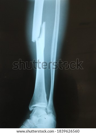Sabu Raijua General Hospital, Sabu Raijua Regency, East Nusa Tenggara, Indonesia. Photo taken 15 July 2020: X-Ray picture show fracture of tibia bone oblique type, lateral side position x-ray picture.