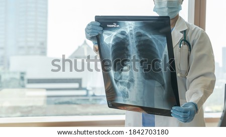Doctor diagnosing patient's health on asthma, lung disease, COVID-19 or bone cancer illness with radiological chest x-ray film for medical healthcare hospital service Royalty-Free Stock Photo #1842703180