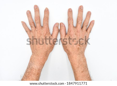 Age spots on hands of Asian elder man. They are brown, gray, or black spots and also called liver spots, senile lentigo, solar lentigines, or sun spots. Isolated on white background. Royalty-Free Stock Photo #1847911771