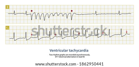 Male, 76 years old, clinically diagnosed with acute anterior myocardial infarction. The electrocardiogram showed ventricular tachycardia and ST-T alternation. Royalty-Free Stock Photo #1862950441