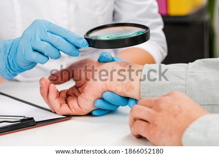 A dermatologist wearing gloves examines the skin of a sick patient. Examination and diagnosis of skin diseases-allergies, psoriasis, eczema, dermatitis. Royalty-Free Stock Photo #1866052180