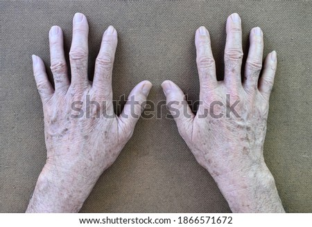Age spots on hands of Asian elder man. They are brown, gray, or black spots and also called liver spots, senile lentigo, solar lentigines, or sun spots. Isolated on brown background. #1866571672