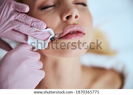 Cropped photo of a cosmetician in latex gloves injecting the dermal filler into the woman lips