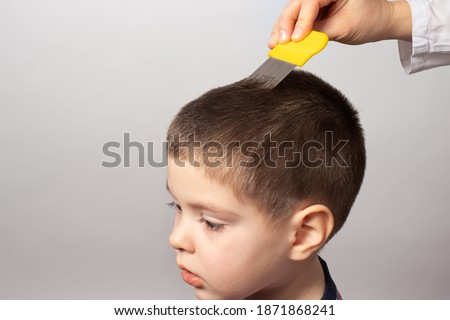The doctor checks the presence of lice in a small child with the help of a crest. Pediculosis in kindergarten, preventive examination. Removing louse and nits from the hair