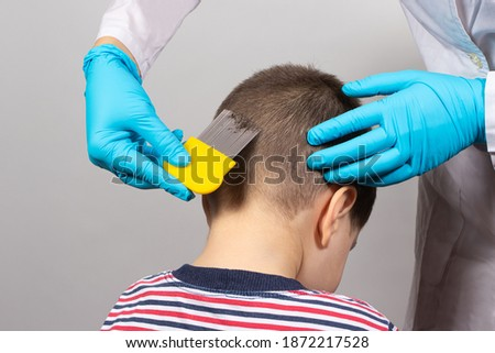 The doctor checks the presence of lice in a small child with the help of a crest. Pediculosis in kindergarten, preventive examination. Removing louse and nits from the hair.