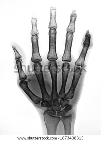 X-ray of hand bones on white background
