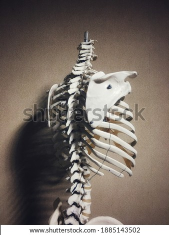 Osteoporosis is a bone thinning disease caused by loss of bone mass, Royalty-Free Stock Photo #1885143502