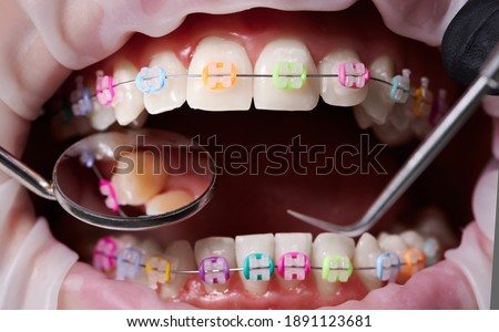Macro snapshot of open mouth, teeth, ceramic braces with colorful rubber bands on them, latex cheek retractor on lips. Dentist checking teeth with mirror and dental explorer. Concept of orthodontics Royalty-Free Stock Photo #1891123681