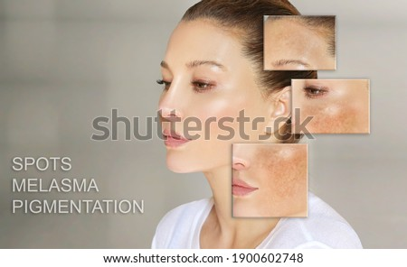 Dark spots, freckles,hyperpigmentation(melasma or chloasma),concept - skin lightening, skin whitening, fruit acids,AHA, Skin Brightening	 Royalty-Free Stock Photo #1900602748