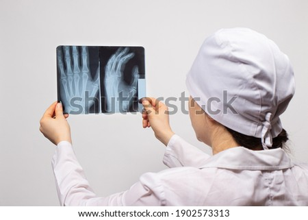 A doctor or radiologist holds an X-ray of a patient with a hand injury. Diagnosis of fractures, fractures of bones and dislocations of the joints of the arm