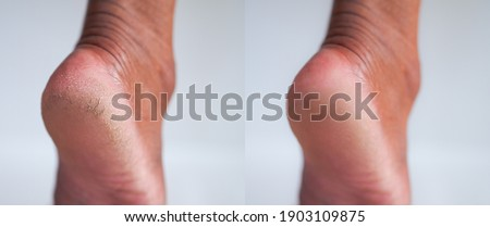 Image before and after cracked heel skin of foot treatment concept.  Royalty-Free Stock Photo #1903109875