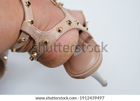A woman foot in an open high heel shoe with dried skin problem. Focus on deep crack dry heel on the foot with bad skin is covered with rough cracks  Royalty-Free Stock Photo #1912439497
