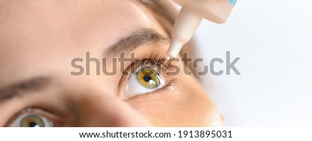 Woman applying eye drop. Vitamin drops from tiredness and redness eyes. Suffering from irritated eye,optical symptoms. Royalty-Free Stock Photo #1913895031