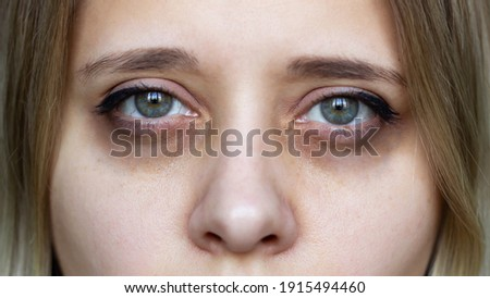 Cropped shot of a young female face. Green eyes with dark circles under the eyes and with red capillaries. Bruises under the eyes are caused by insomnia, fatigue, nervousness, lack of sleep and stress Royalty-Free Stock Photo #1915494460