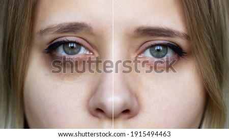 Cropped shot of a young female face with makeup. Female green eyes with bruises under eyes before and after cosmetic treatment. Dark circles under the eyes Royalty-Free Stock Photo #1915494463