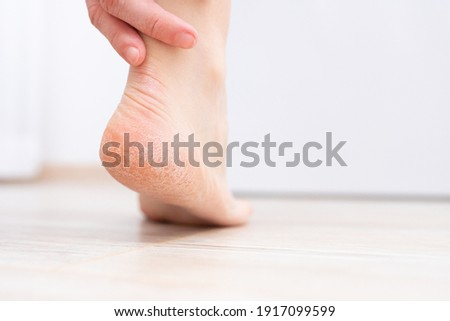 The dry skin on the heel is cracked. Treatment concept with moisturizing creams and exfoliation for healing wounds and pain when walking. Dehydrated skin on the heels of female feet Royalty-Free Stock Photo #1917099599