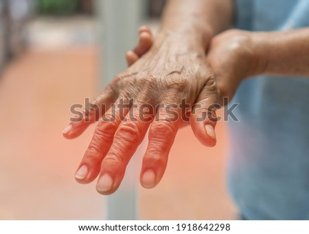 Peripheral Neuropathy pain in elderly patient on hand, palm, fingers and sensory nerves with numb, aching, muscle weakness, stabbing, burning from chronic inflammatory demyelinating polyneuropathy Royalty-Free Stock Photo #1918642298