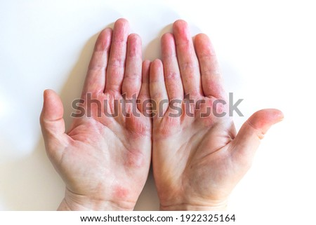 Strong allergic eczema on hands. Red, cracked skin with blisters Royalty-Free Stock Photo #1922325164