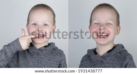 Before and after. The child shows the damaged teeth by caries, and in the second picture the dentist's work on the restoration of teeth. Children's caries, treatment, recovery
