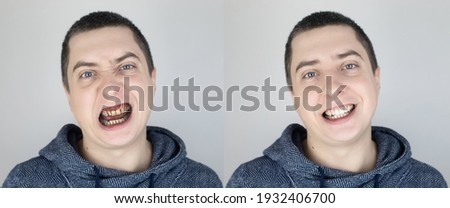 Before and after. The man shows the damaged teeth by caries, and in the second picture the dentist's work on the restoration of teeth. Man caries, treatment, recovery