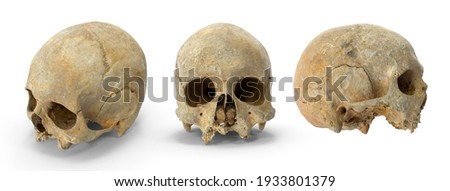 Human skull cranium with leprosy. Human brain anatomy. Brain in skull. Medical education concept. Isolated white background 3d illustration different angle view realistic set