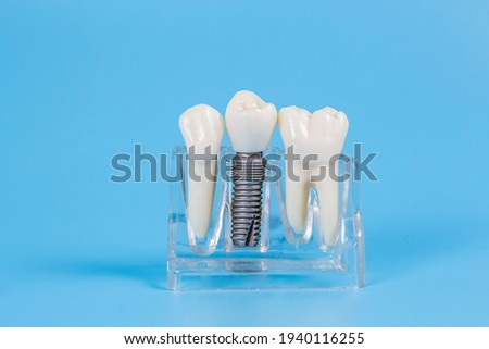 Plastic dental crowns, imitation of a dental prosthesis of a dental bridge for three teeth with a metal screw implant on a blue background.