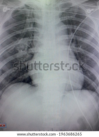 Film X-ray show right pneumothorax with right chest tube subcutaneous emphysema al along right chest wall for medical and technology concepts  Royalty-Free Stock Photo #1963686265