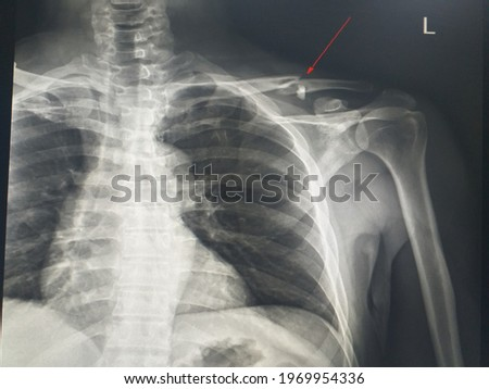 Soft and blurry X-ray shoulder (ap, lat)  finding Fracture at the posterolateral aspect of left 2nd rib and Fracture at middle 1in3 of the left clavicle with minimal displacement.   Royalty-Free Stock Photo #1969954336