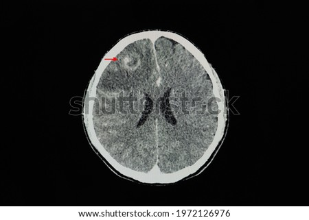 A CT brain scan with contrast of a patient showing ring shaped enhancing CT lesions. Differential diagnosis includes brain abscess, primary or metastatic brain tumors or demyelinated lesions.
