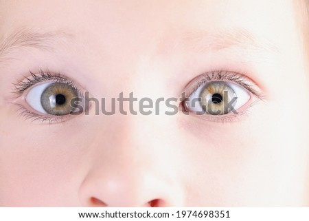 Little girl eyes with slight squint closeup