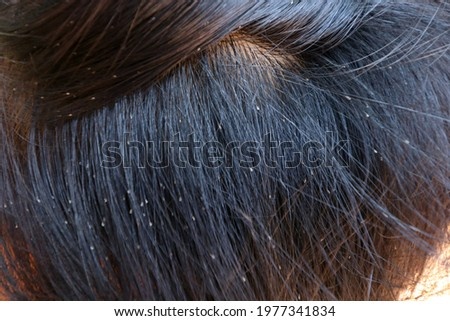 Louse egg on hair of child's head.