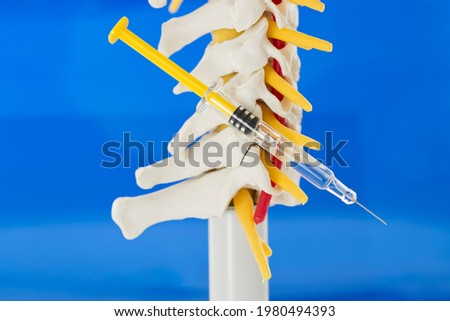 Spinal infiltration as pain therapy. Lateral view of model of cervical spine with cervical vertebrae, vertebral artery, cervical discs, spinous process, spinal nerves on blue background and syringe Royalty-Free Stock Photo #1980494393