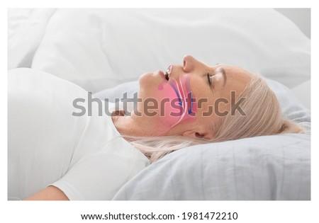 Illustration showing airway during obstructive sleep apnea Royalty-Free Stock Photo #1981472210