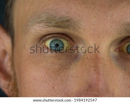Mens eyes obstructive Jaundice yellowish. Real people liver dysfunction icteruswith cirrhosis hepatitis symptom face skin. Young man bilirubin pigmentation biliary tract obstruction Gilbert's syndrome Royalty-Free Stock Photo #1984192547