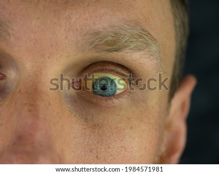 Mens eyes obstructive Jaundice yellowish. Real people liver dysfunction icteruswith cirrhosis hepatitis symptom face skin. Young man bilirubin pigmentation biliary tract obstruction Gilbert's syndrome Royalty-Free Stock Photo #1984571981
