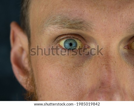 Mens eyes obstructive Jaundice yellowish. Real people liver dysfunction icteruswith cirrhosis hepatitis symptom face skin. Young man bilirubin pigmentation biliary tract obstruction Gilbert's syndrome Royalty-Free Stock Photo #1985019842