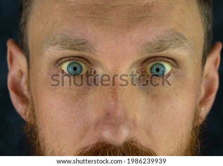 Mens eyes obstructive Jaundice yellowish. Real people liver dysfunction icteruswith cirrhosis hepatitis symptom face skin. Young man bilirubin pigmentation biliary tract obstruction Gilbert's syndrome Royalty-Free Stock Photo #1986239939