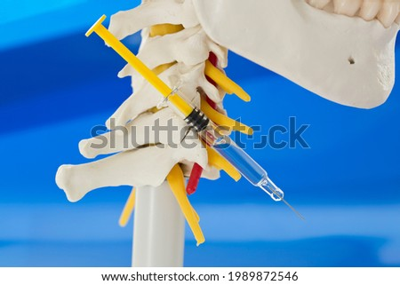 Concept of spinal infiltration for pain management. Lateral view of model of lower jaw, cervical spine with cervical vertebrae, vertebral artery, cervical discs, spinous process, spinal nerves and syr Royalty-Free Stock Photo #1989872546