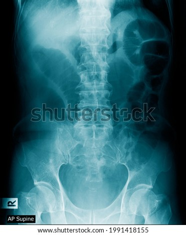 x-ray image of human abdomen, picture of human spine and pelvic bone show degenerative change of spine, low back pain and refer pain to lower limb