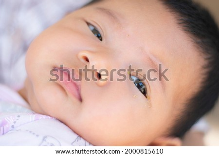 Selective focus on the baby's eye with dust. Disease tear ducts tons of newborns. Nasolacrimal duct obstruction in baby it is a blockage of the lacrimal drainage system.  Royalty-Free Stock Photo #2000815610