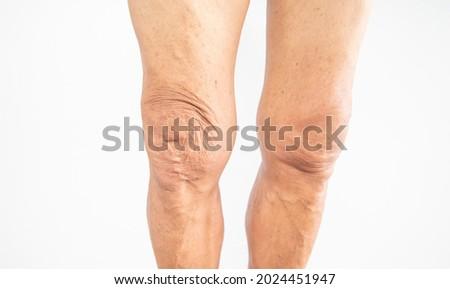 Picture of an elderly man leg with symptom of weak knee joint.