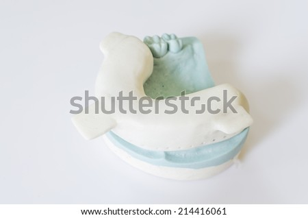 An Individual tray and a dental cast #214416061