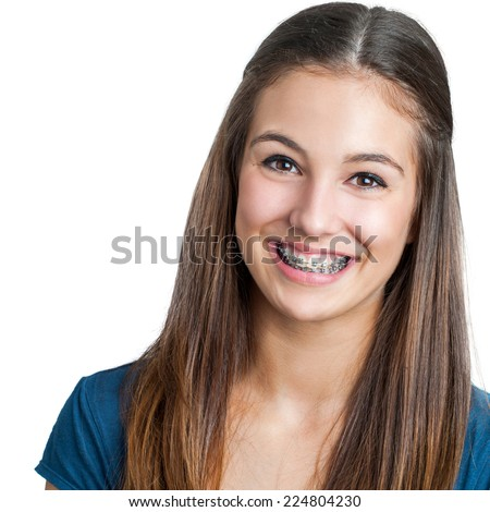 Close up portrait of Smiling Teen girl showing dental braces.Isolated on white background. #224804230