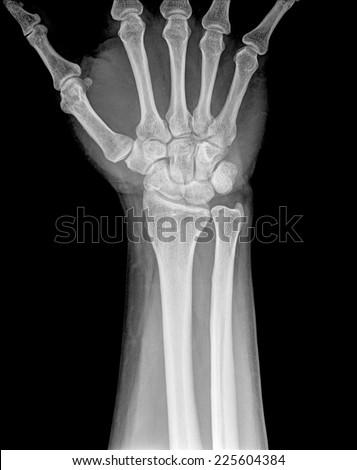 X-ray of human hand and wrist. #225604384