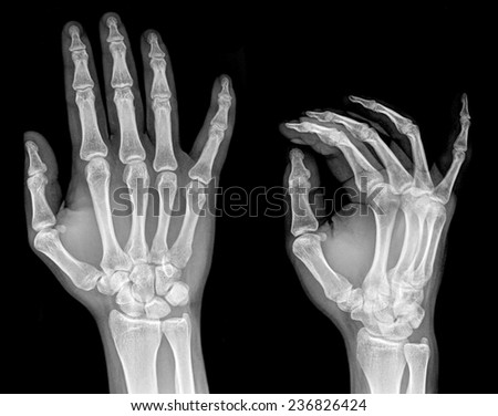 X-ray of two hands extended, frontal view #236826424