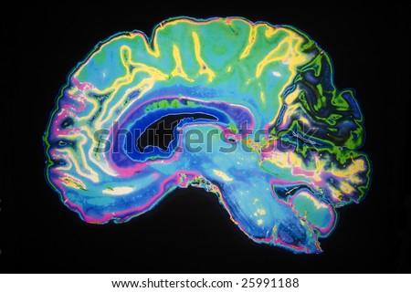 Artificially Colored MRI Scan Of Human Brain
